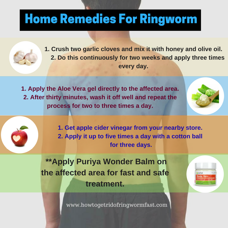 How To Get Rid Of Ringworm Naturally Fast At Home - How to get rid of ringworm quickly with home remedies